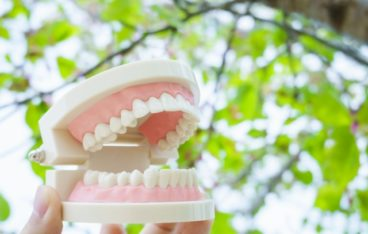 What is an implant?